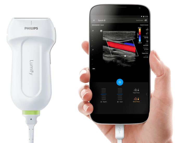 philips portable ultrasound machine price